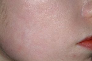 Acne-Scars-Treatment-after-92028