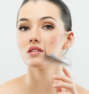 Dermatologist Orlando Acne Treatments