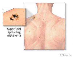 melanoma-treatment-diagnosis-orlando-dermatology