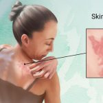 hives-urticaria-orlando-dermatology