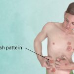 ringworm-orlando-dermatology