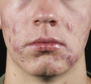 Cystic Acne Treatments Orlando