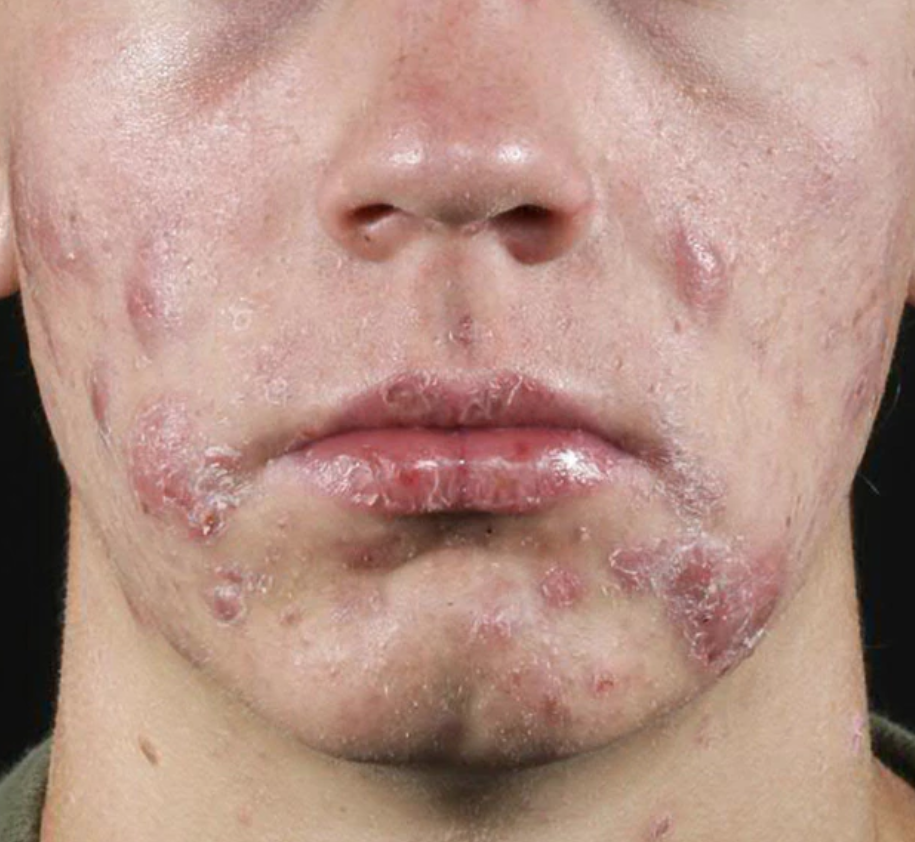 The Ultimate Solution To Cystic Acne Orlando Dermatology Center
