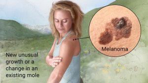 Melanoma Dermatology Center Orlando