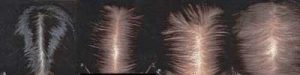 Female-pattern-hair-lossFINAL