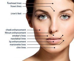 Dermal Fillers - Orlando Dermatology Center